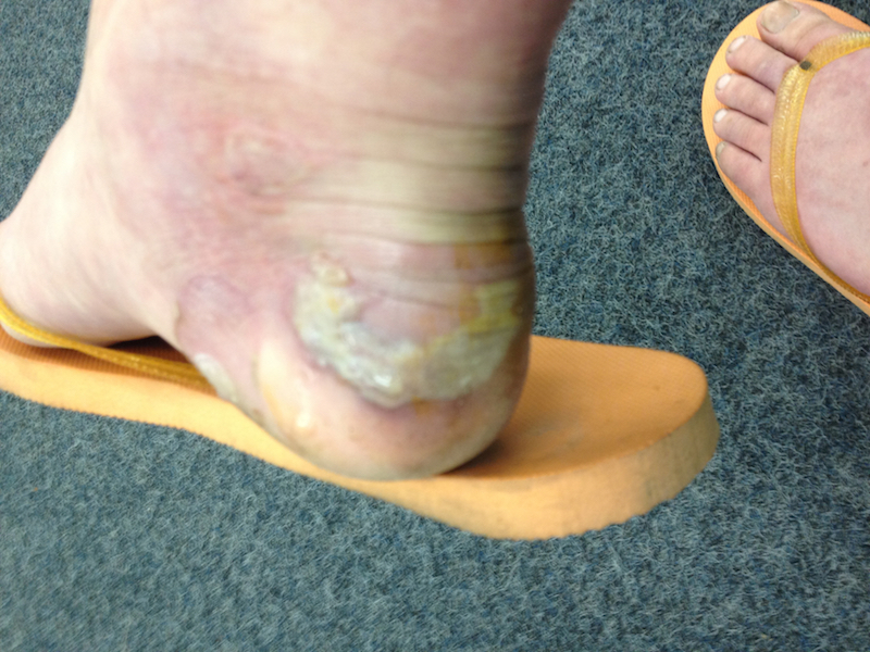 The infected blister on my right heel.